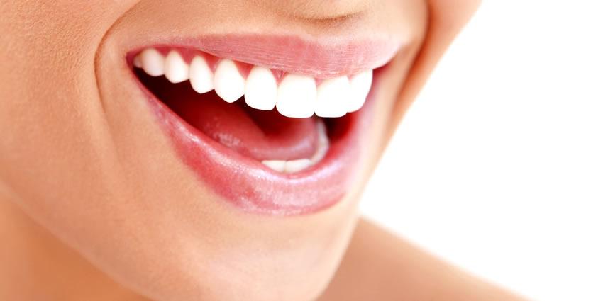 """Denti e labbra a prova di sorriso, secondo MioDottore: frutti di bosco come """"antibatterici"""" naturali e scrub home made a base di zucchero semolato e olio di argan Sorrid10"""