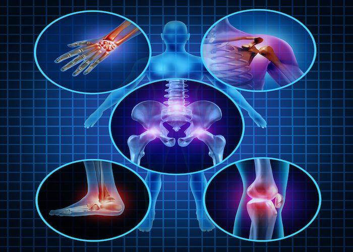 4 aliments qui peuvent aider à soulager les douleurs de l'arthrite naturellement Deposi13