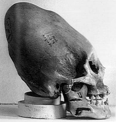 Etude sur prise de tête de nos ancêtres Cranes10