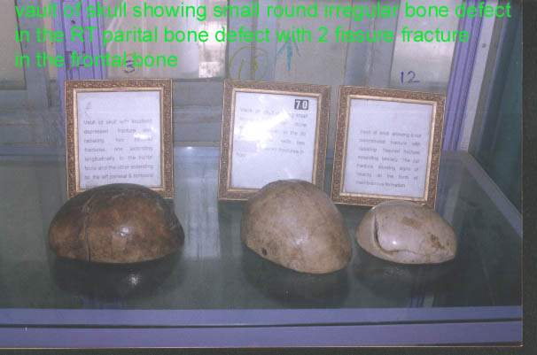 forensic museum (1) 15881521