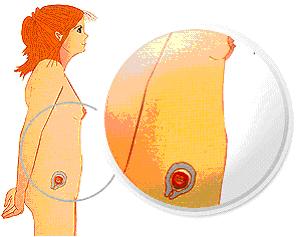 bebe - Razvoj bebe od I do XL nedelje trudnoće 110