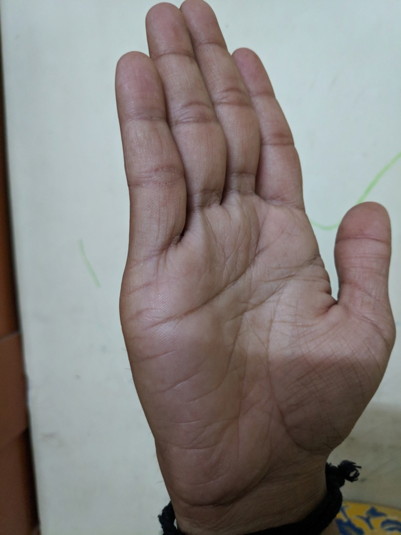 About my palm 20190415