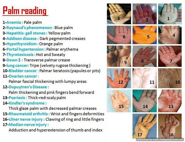 >> Palm Reading << A_113