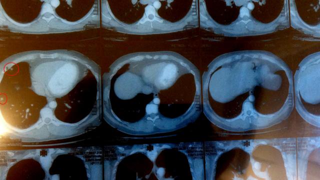 Туберкулёз или Саркоидоз? Kt510