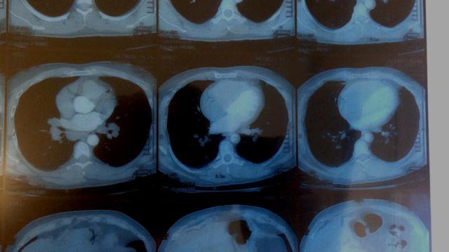Туберкулёз или Саркоидоз? Kt610