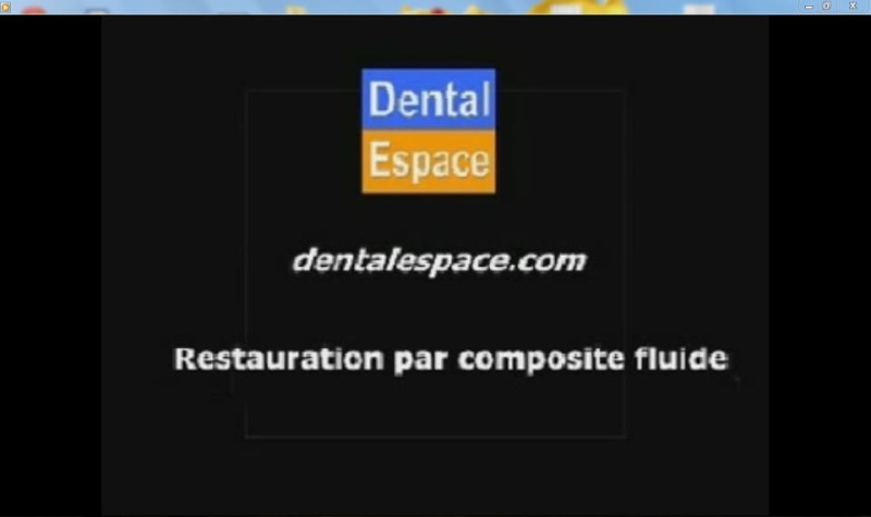 Restauration par composite fluide 55868210