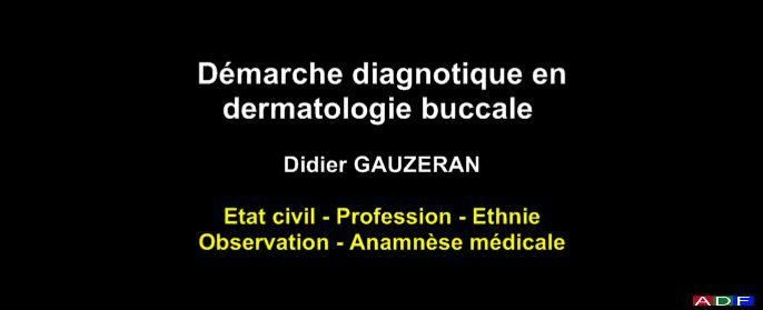 buccale - Démarche diagnostique en dermatologie buccale Dermat10