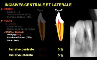 Anatomie endodontique des incisives maxillaires et mandibulaires [vidéo] Isi10