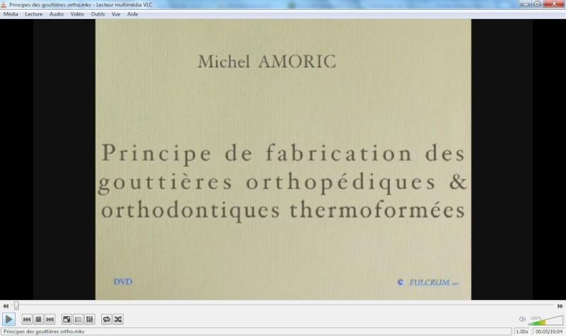 Principes de fabrication des gouttières orthopédiques&orthodontiques themoformées Sans_t22