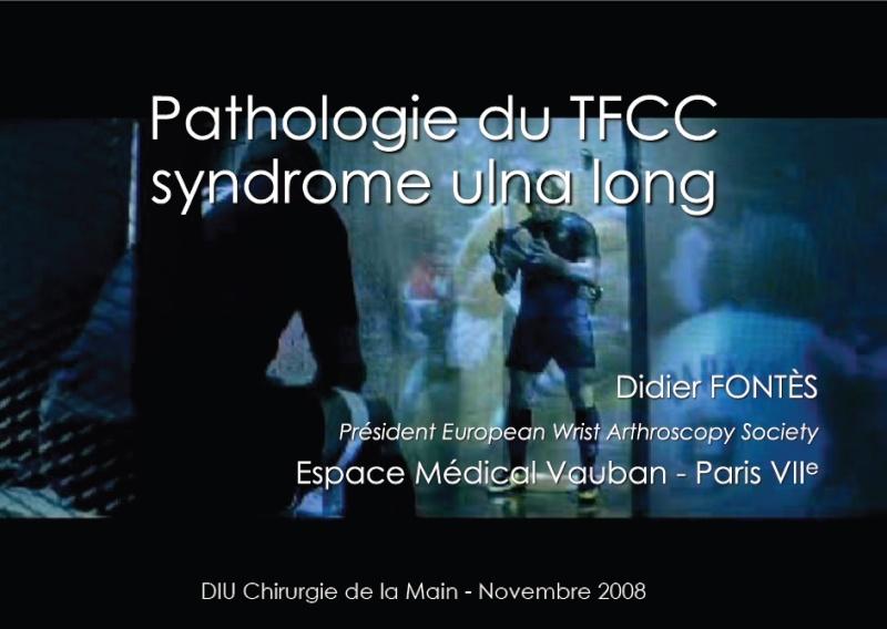 Pathologie du TFCC-Syndrome ulna long Tfcc10