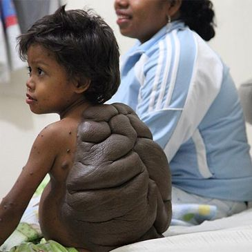 El 'niño tortuga'  Ninoto10
