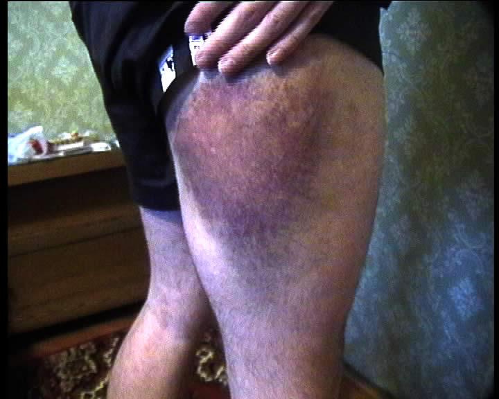 MEDIC! I'm hit! Bruise10