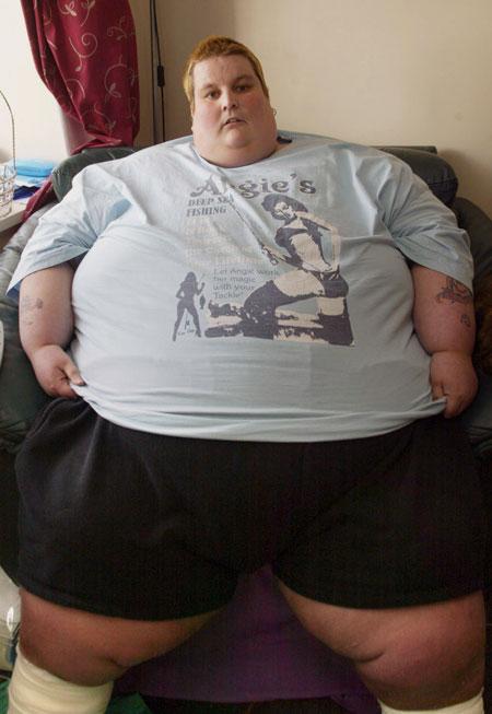 Njeriu më i trashë në botë dobësohet për 230 kilogramë Chrisl10