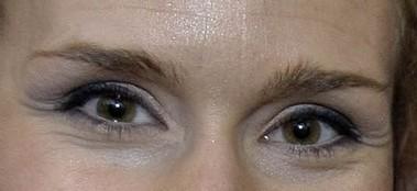Nouveau jeu : à qui sont ses yeux? - Page 11 Photo13