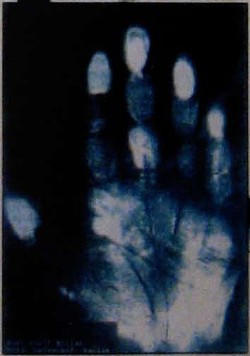 IV - The Hand of Hitler Hitler14
