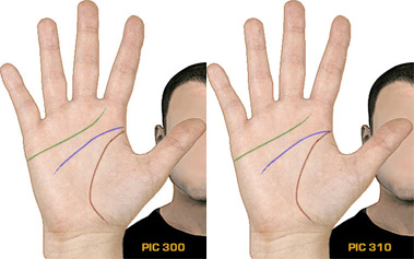 Do you have 'normal' hand lines? Normal10