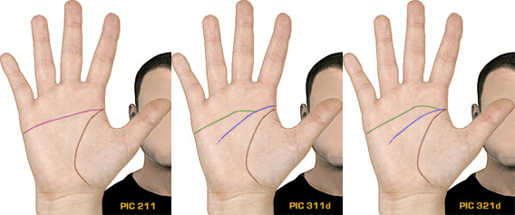 Simian Line / Single Transverse Palmar Crease Simian10