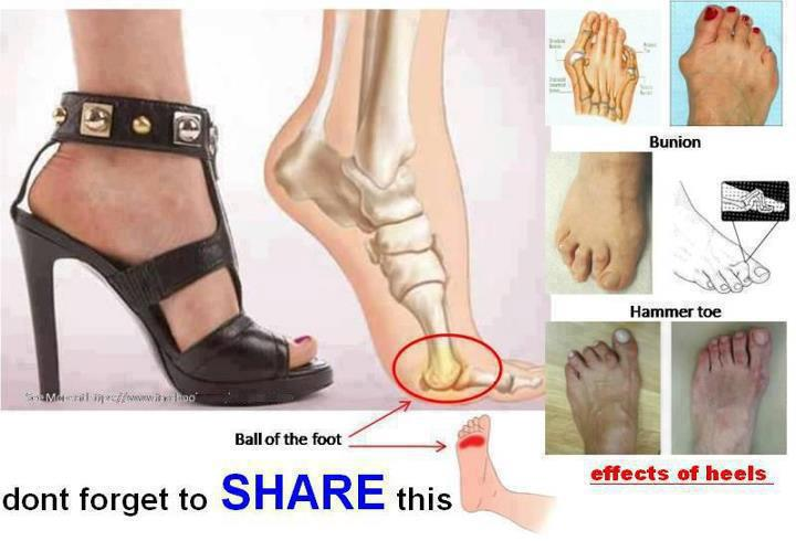Problem with High Heels  37830911