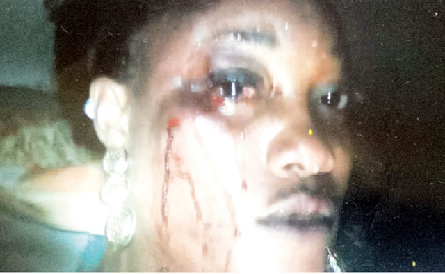 Hairdresser And Boyfriend Fighting Over s*x In Lagos Emem-a10