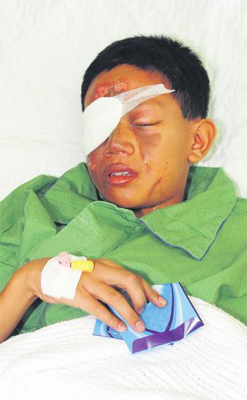 Mercun bola' causes 40pc burns to boy's face Cracke10