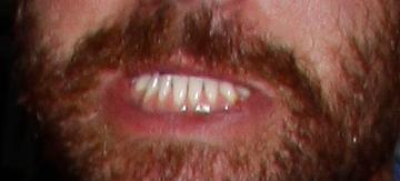 Voleurs d'images Dents10