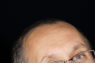 Whose Hair Line is it anyway???? Dsc01028