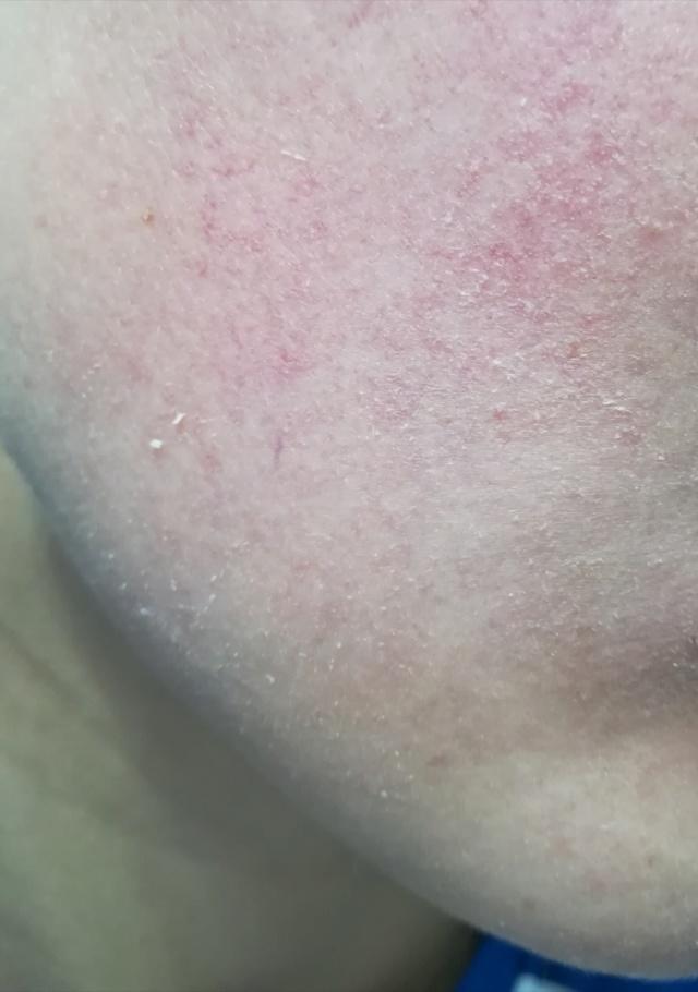 Les peaux sensibles Img_2032