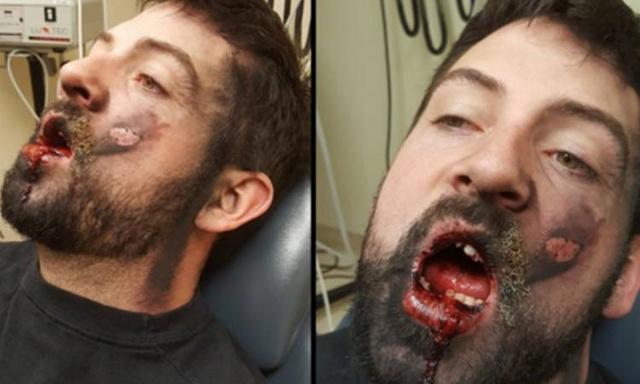 Il essaie d'arrêter de fumer et sa cigarette électronique lui explose au visage !  Main_r10