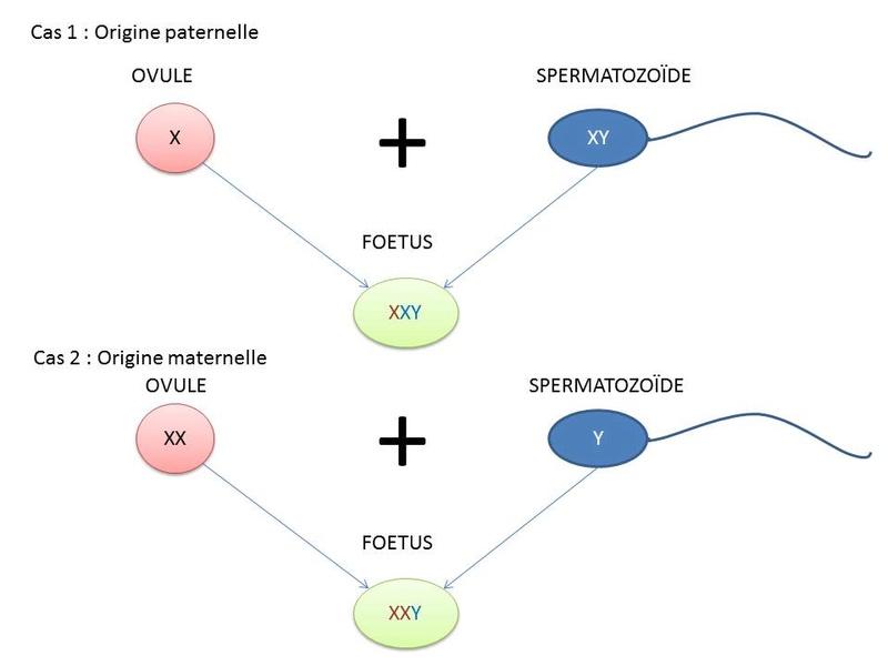 Origine paternelle ou maternelle du syndrome ? Influence de l'âge du père ? Transm10