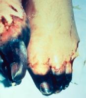About Bubonic Plague 75614810