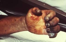 About Bubonic Plague Images10