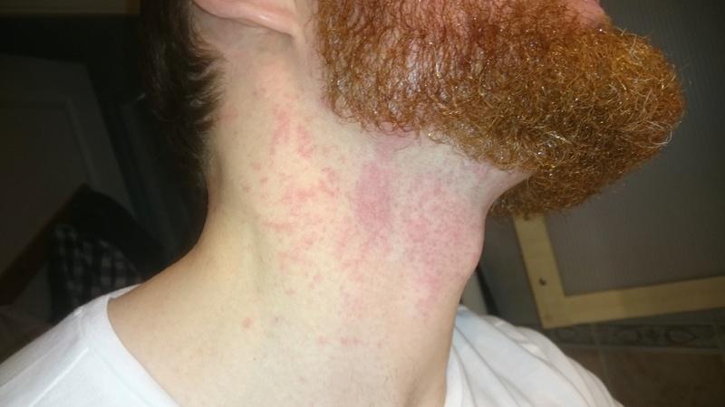 Un peu paumé! Premier rasage à la shavette: Gel à raser, Pierre d'alun, serviette chaude.. Dsc_0711