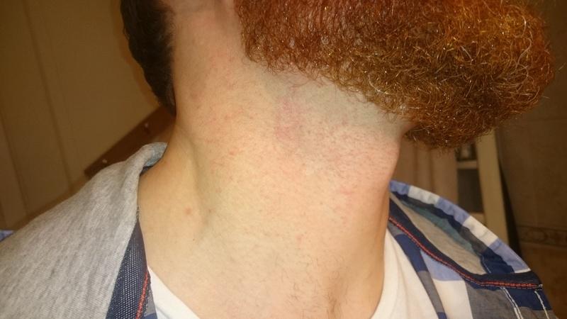 Un peu paumé! Premier rasage à la shavette: Gel à raser, Pierre d'alun, serviette chaude.. Dsc_0716