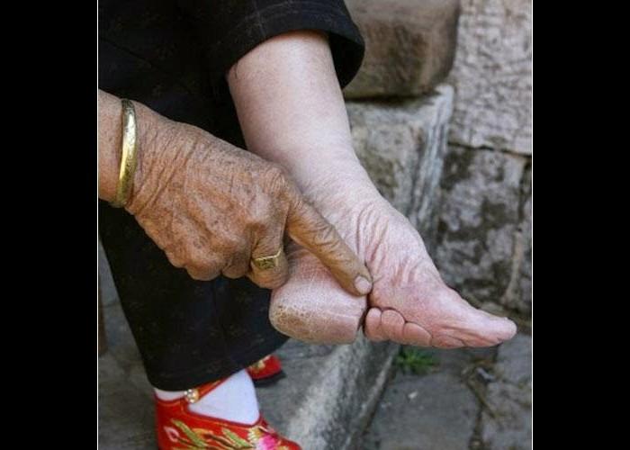 Histoires de pieds ... chaussés N120