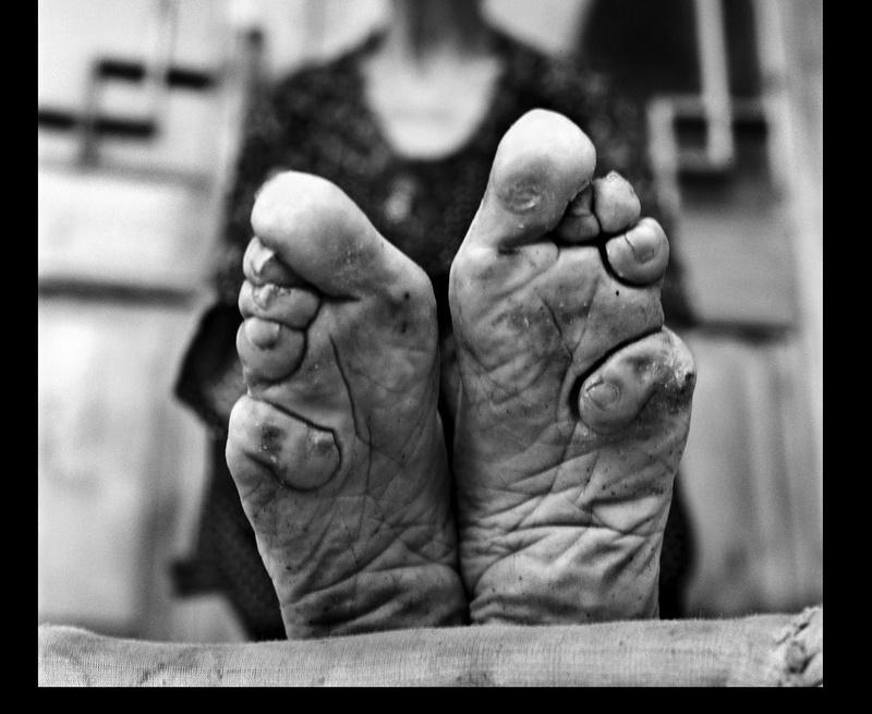 Histoires de pieds ... chaussés V58