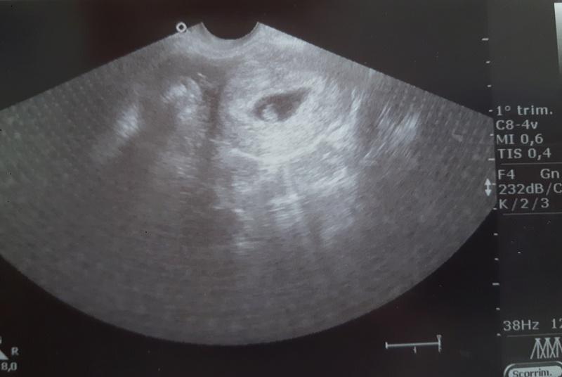 [News] Il metodo Ramzi per predire il sesso del bambino in gravidanza - Pagina 2 20161116