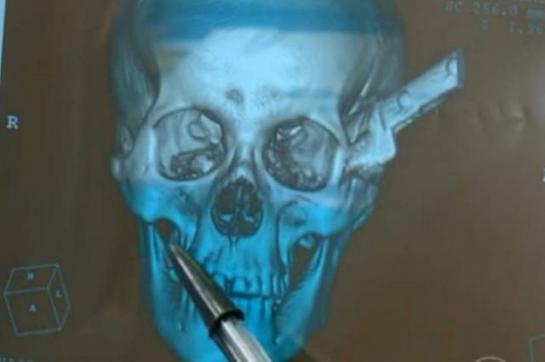 Un Brésilien (Juacelo Nunes ) parcourt 100 km avec un couteau de 30 cm planté dans le crâne 44110210