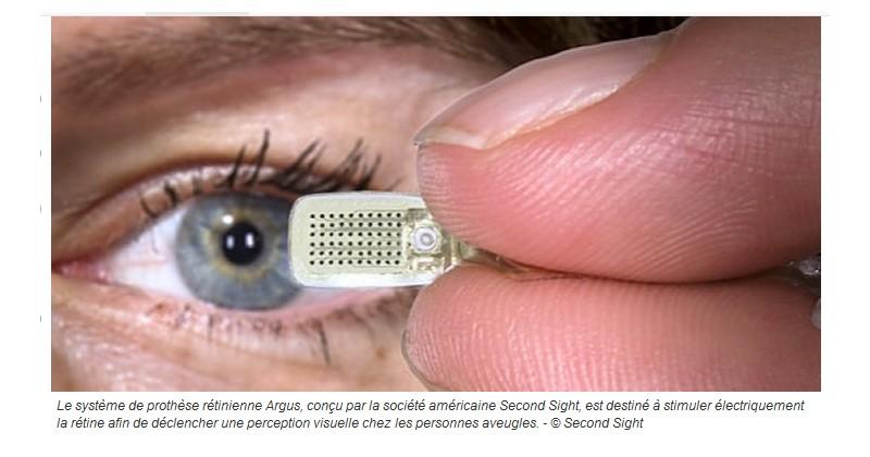 Cet oeil bionique redonne la vue à ceux qui l'ont perdue Sans_365
