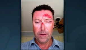 Allenby kidnapped from bar, beaten, robbed Allenb10