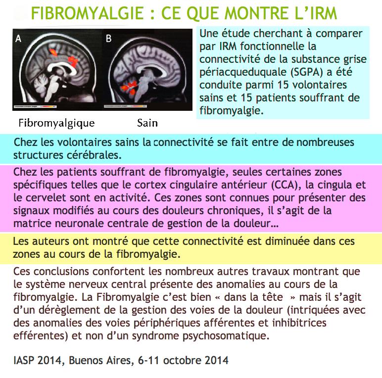 IRM d'un fibro Irm_fi10
