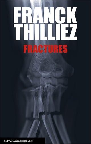 Fractures Fractu10