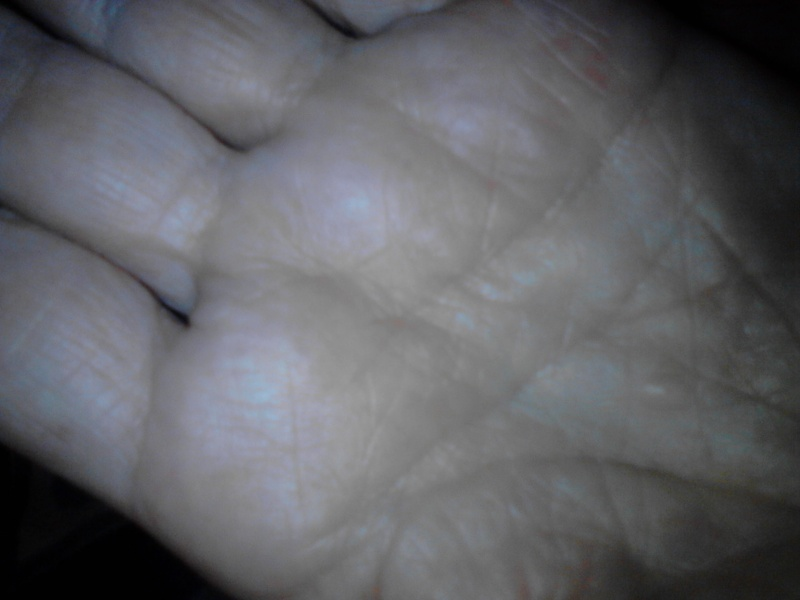 V - Can Mental Illness be Diagnosed from the Palm?I - Page 5 810