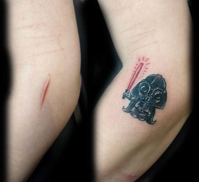 Turning scars into tattoos... 2ea21210