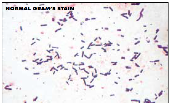 la coloration de Gram Gram_n10
