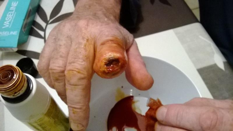bout du doigt nécrosé Doigt11