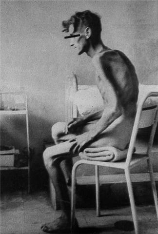 Il y a 56 ans, armistice en Indo, retour des prisonniers, dans quel état, voyez. 2210