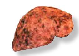 Kab mob siab B (Hepatits B) S410