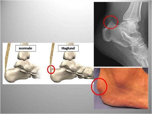 Entesite achillea/ borsite-  ortopedico, fisiatra  e vaire - Pagina 3 Formic10