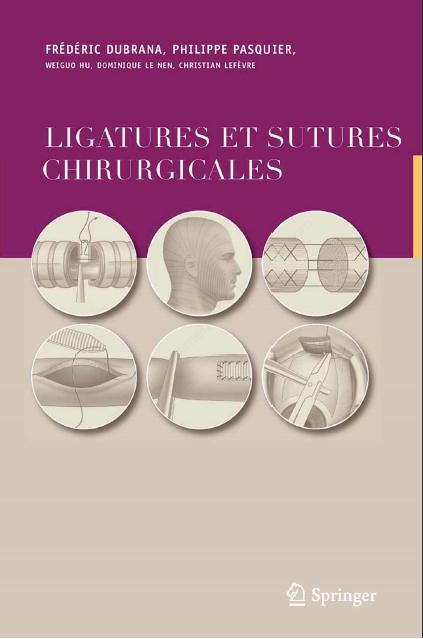Ligatures et sutures chirurgicales - Techniques chirurgicales Ligatu10
