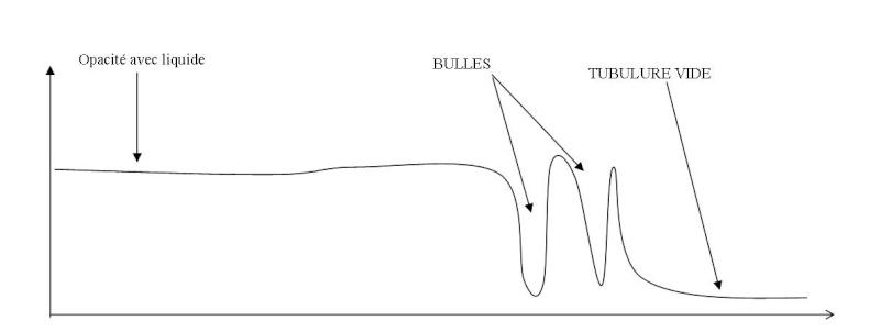 Science, médecine, industrie: Pour coincer la bulle... Bulles10